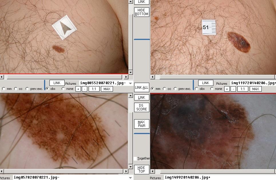 1. stádiumú bőrrák