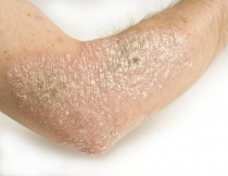 papilloma vírus bőr condyloma férfiaknál a kezelés módszere