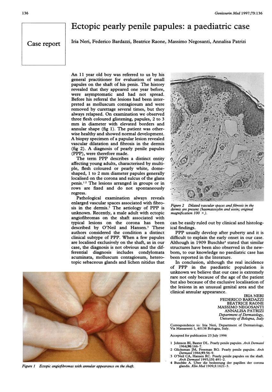 papilloma vírus vakcina hímek lombardia
