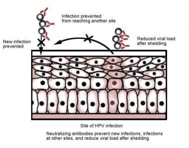 Hpv virus ferfiaknal kepek. Mennyire veszélyes a HPV? can hpv cause bladder cancer