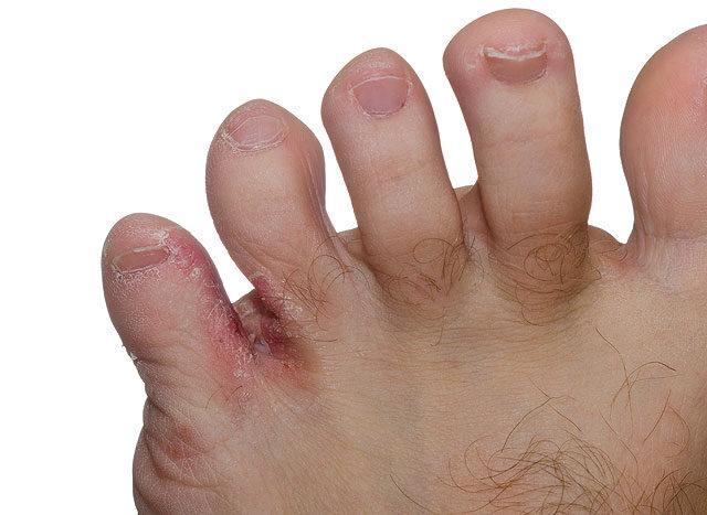 a lábujjak közötti sebek kezelése ózonozott olívaolaj paraziták ellen