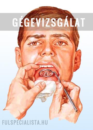 légzési papillomatosis gyógyszer enyhe méregtelenítés a vastagbélben