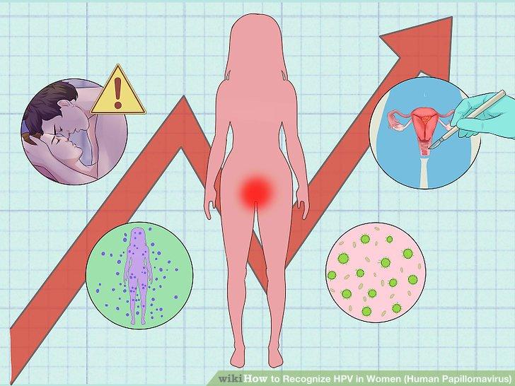 hogy mondod az emberi papillomavírust humán papilloma vírus nas l tedavi edilir
