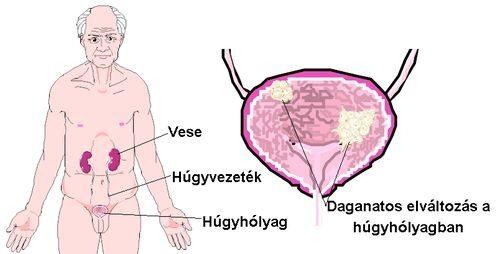 húgycső rák tünetei