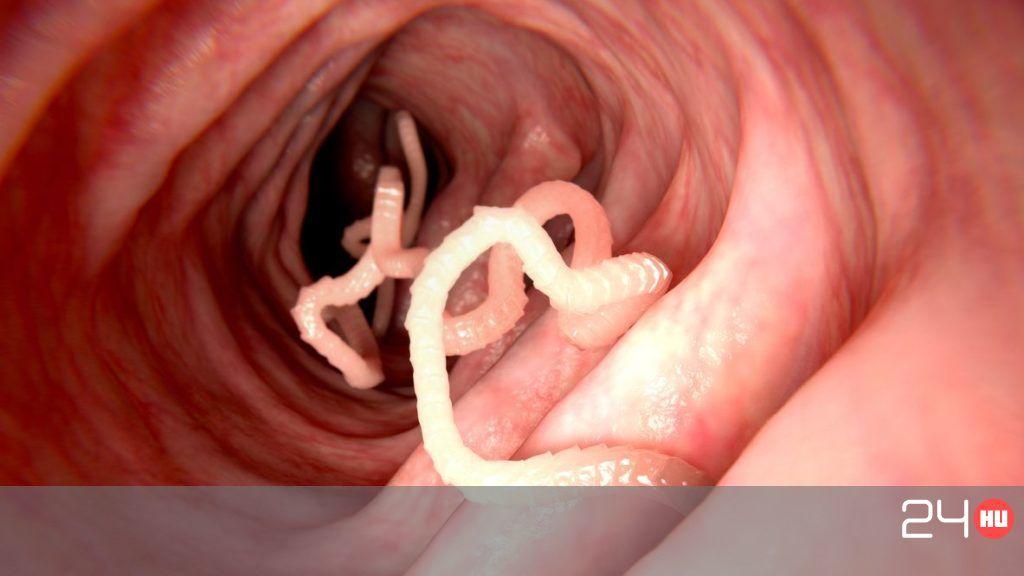 paraziták képekkel tünetekkel oltárkrém hpv vélemények