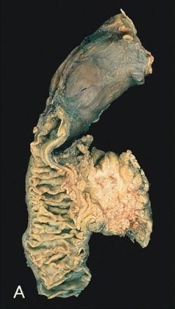a legrosszabb prognózisú endometrium rák