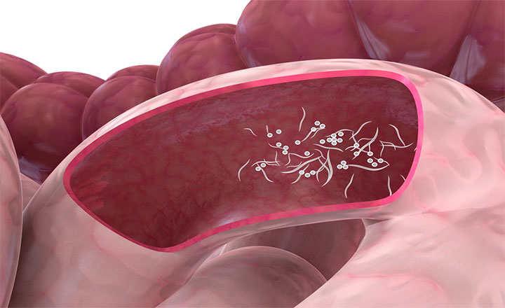 helmint fertőzés, mit kell tenni végbélrák vírus