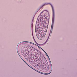 paraziták enterobius vermicularis vélemények a talpi szemölcs kezeléséről