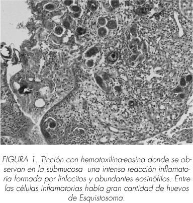 schistosomiasis elimináció