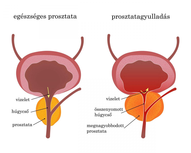 húgycső rák tünetei ami azt jelenti, hogy szonár van papillómám