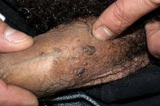 nyaki humán papillomavírus betegség bilaterális légúti papillomatosis