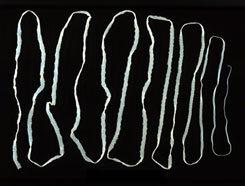 galandféreg jelei örökké gyógyítja a parazitákat