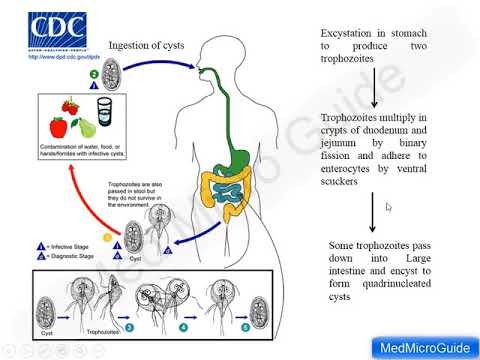 Giardiasis tünetek felnőtteknél és a kezelés