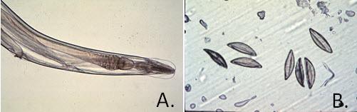 pinworms a graham módszerrel milyen következményei vannak a condylomának