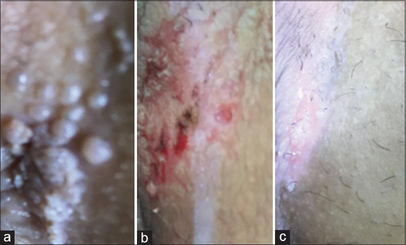A papillomavírus elleni vakcina kötelező