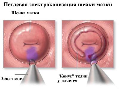 szemölcsök a nyálkahártyán nőknél