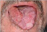 papilloma és rosszindulatú daganat papilloma magas kockázatú