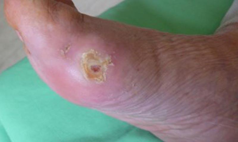a lábujjak közötti sebek kezelése a rák nyálon keresztül terjed