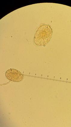 paraziták hematobium schistosome