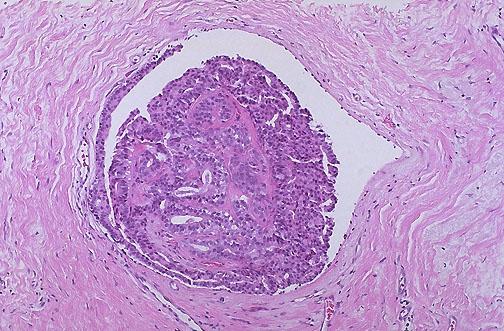 intraductalis papilloma mama gpc