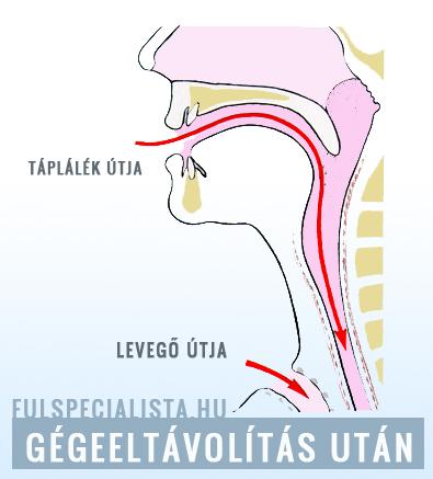 hpv oropharyngealis rák epidemiológia Ozeretskovsky klinika és a helminthiasis kezelése