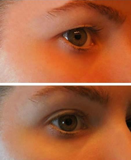 A szemölcs eltávolítása és kezelése - HáziPatika