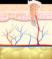 paraziták tünetei az orrmelléküregekben