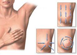 emlőrák tünetei nők