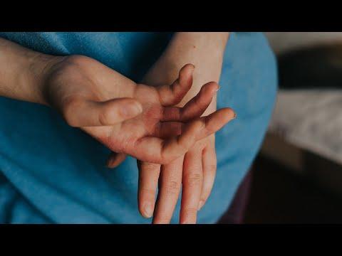 paraziták szemcseppjei emberek számára típusú helmintás betegségek