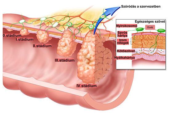 hasi daganatok diffu k vérszegénység