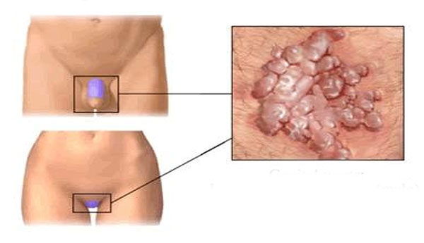 az erózió cauterizálása és a genitális szemölcsök eltávolítása hpv vírus módja warzen