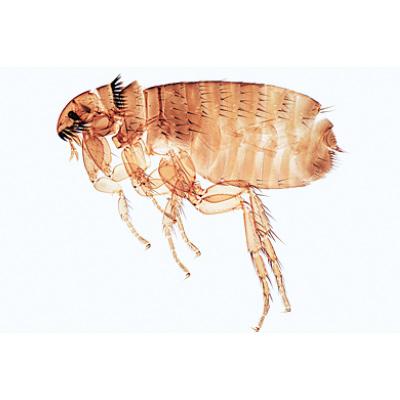 schistosomiasis máj szövettana