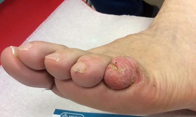 égő a lábujjak kezelése között nő a hóna alatti bőrön