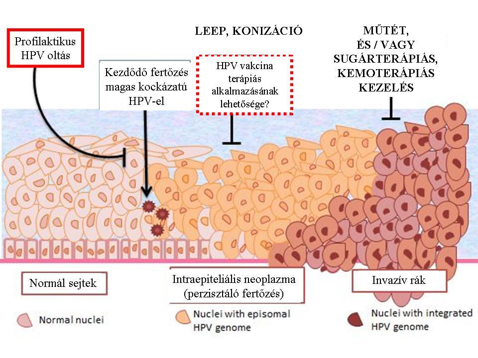 mi a hpv rákos sejtek