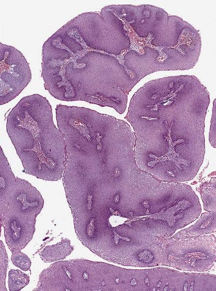 giardia lamblia parazita
