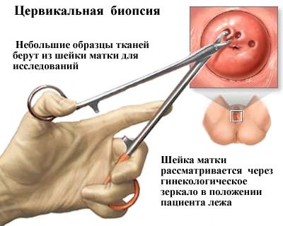 papillomavírus torok diagnózisa