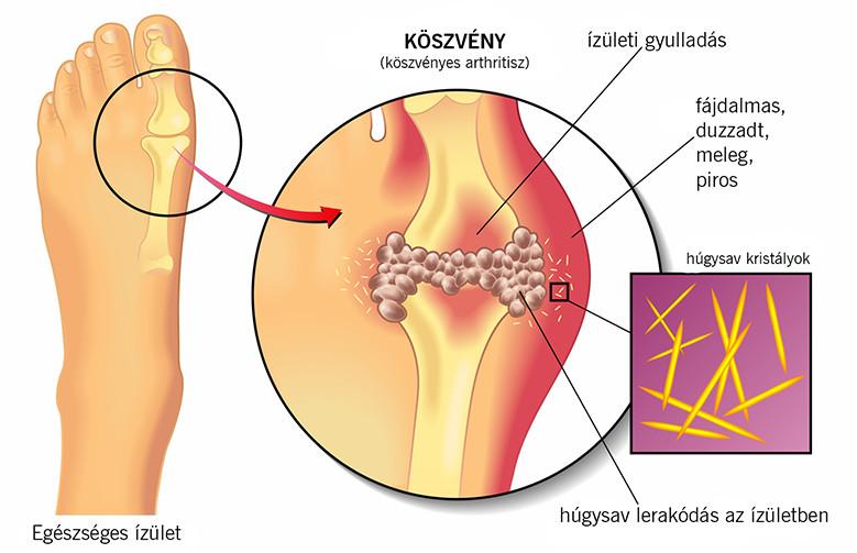a helminthiasis tünetei nőknél