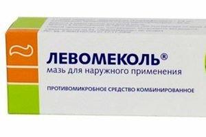 levomekol kenőcs szemölcsök ellen hpv magas kockázatú, nem 16 18 kezelés
