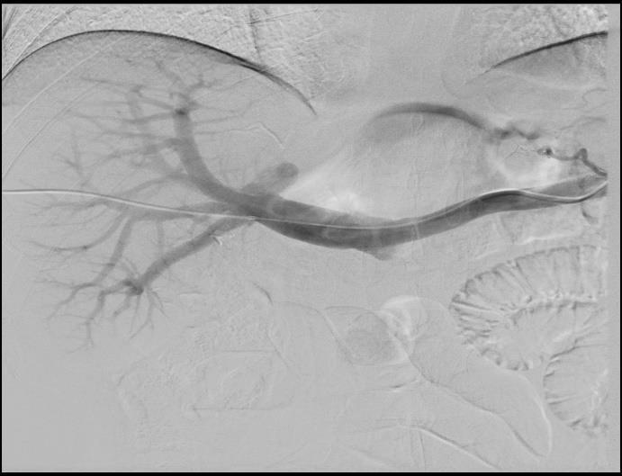 májrák hepatectomia a vestibularis papillomatosis