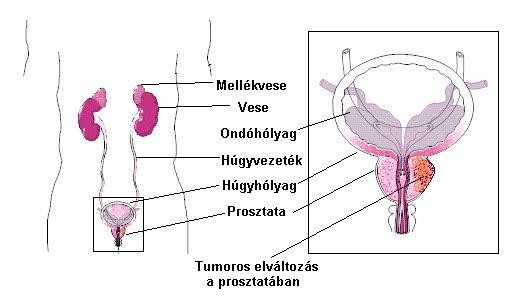 A prosztatarák okai hpv és oropharyngealis rák