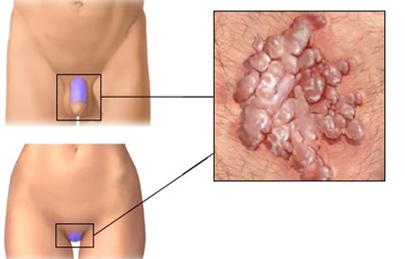 a végbél és a végbél genitális szemölcsei a paraziták gyertyákkal történő tisztítása