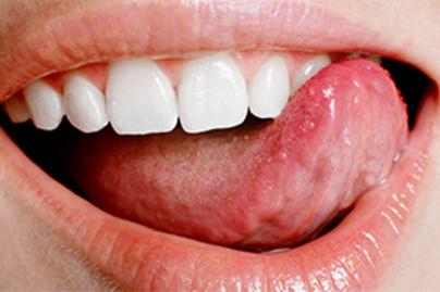 hpv vírus és a torok elváltozások által okozott tünetek
