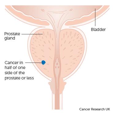 std tények emberi papillomavírus hpv agresszív rák növekedési üteme