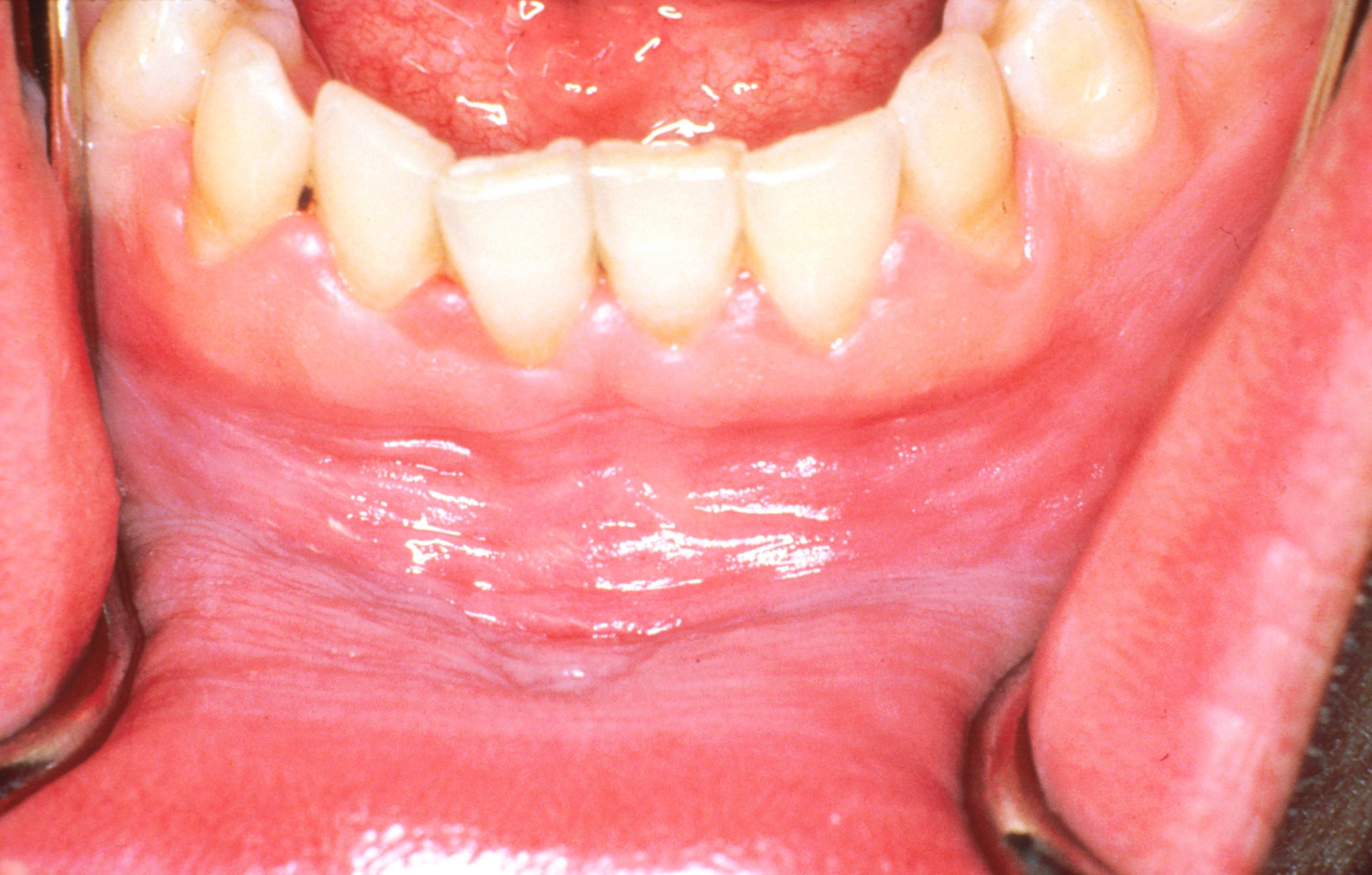 hpv és szájrák tünetei