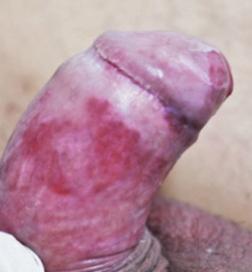 a genitális szemölcsök kezelése a nyelv alatt