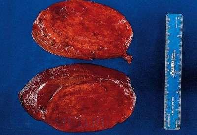 zellveranderung durch hpv vírus papilloma vírus DNS vagy rna
