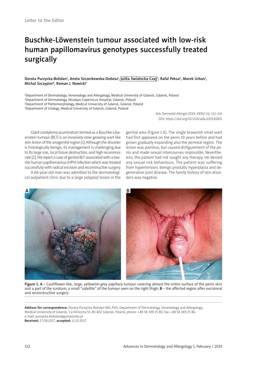 férgek kezelése emberben terhesség alatt