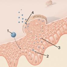 condyloma tünete