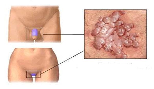 genitális herpesz és papilloma