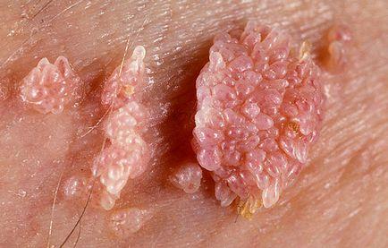 petefészekrák hányinger rák hormonterápia mellékhatásai